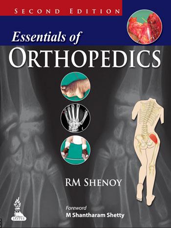Orthopaedics Book Pdf