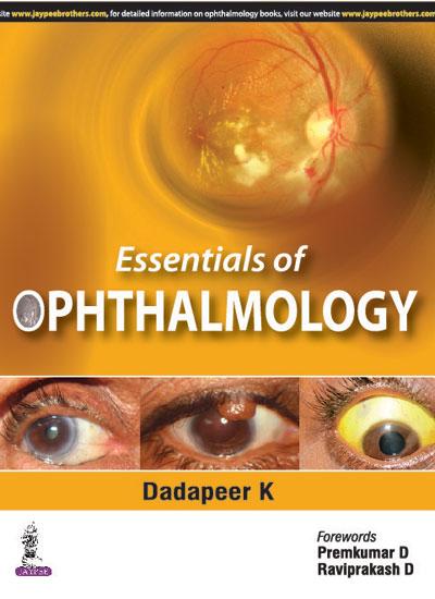 Khurana Ophthalmology Book